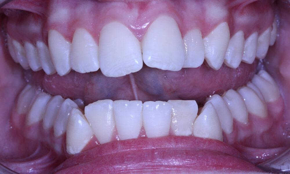 dents-initial